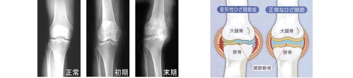 変形性膝関節症の解説画像