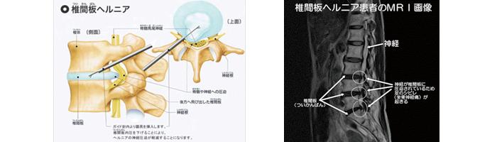 腰椎椎間板ヘルニアの解説画像