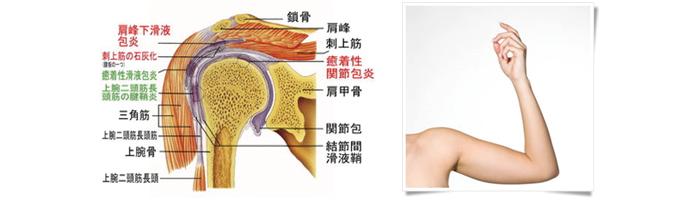 五十肩(肩関節周囲炎)の解説画像