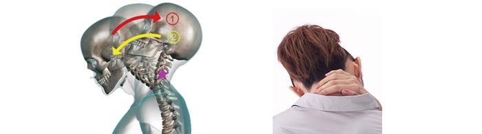 交通事故によるむち打ち、首の痛み、腰の痛みの解説画像